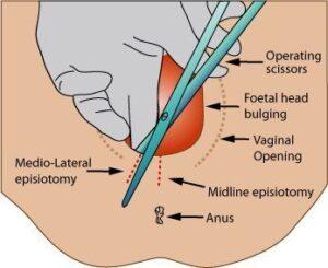 Episiotomía mediolateral