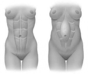 Diastasis hipopresivos