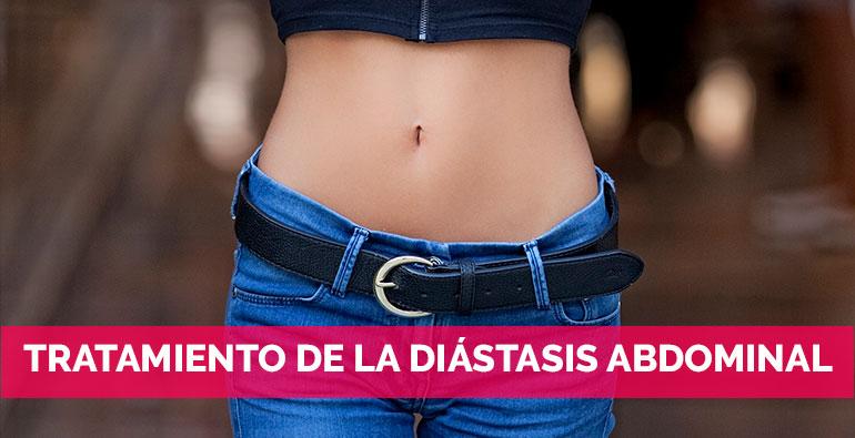 Tratamiento de la diástasis abdominal minimanete invasiva
